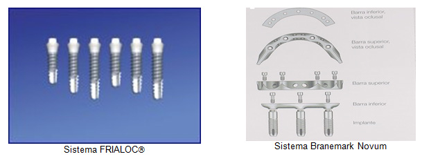 Implantes Dentário