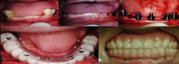 Carga imediata em regiões posteriores de mandíbula